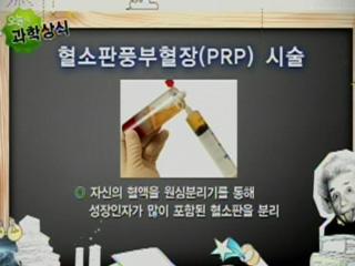 혈소판풍부혈장(PRP) 시술