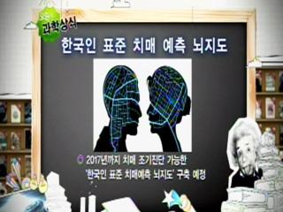 한국인 표준 치매 예측 뇌지도