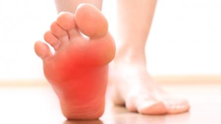 지긋지긋한 발바닥 통증…족저근막염