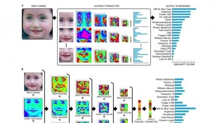 희귀 유전 질환 90% 정확도로 진단하는 AI 개발
