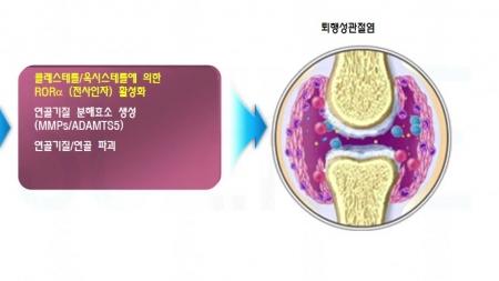 콜레스테롤, 퇴행성 관절염 유발 증명