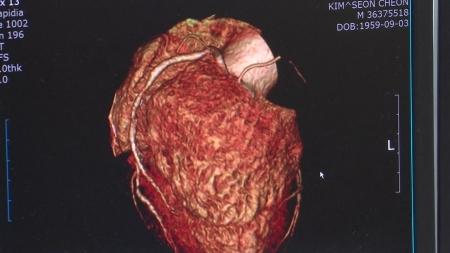 자궁경부암 바이러스, 심혈관질환에도 영향