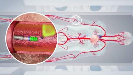 [줌 인 피플] 복잡한 혈관도 척척 '가이드와이어 마이크로 로봇'