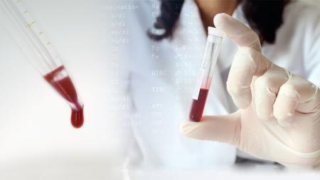 혈액 속 독소·중금속 감지하는 기술 개발