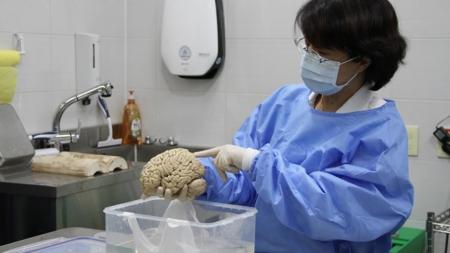 뇌 질환 연구용 뇌 기증 100건 넘어