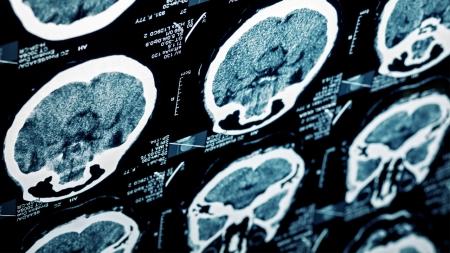 [내 몸 보고서] 한국인의 3대 사망 원인…뇌졸중과 재활