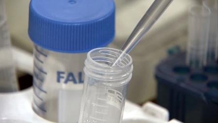 DNA 손상 찾는 단백질 움직임 포착
