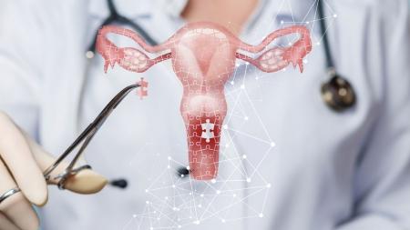 [내 몸 보고서] 가장 흔하지만, 예방 가능한 '자궁경부암'