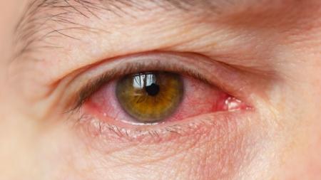 [내 몸 보고서] 눈에 걸리는 감기, 결막염