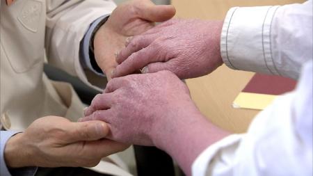 건선 환자 암 발생률 최대 11배까지 높다