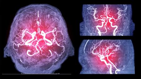 [내 몸 보고서] 언제 터질지 모르는 시한폭탄…'뇌동맥류'