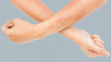 [내 몸 보고서] 봄철이면 더 심각해지는 증상!…아토피 피부염