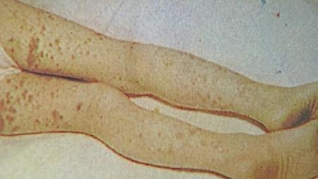 코로나 관련 의심 어린이 가와사키병 뉴욕서도 발병