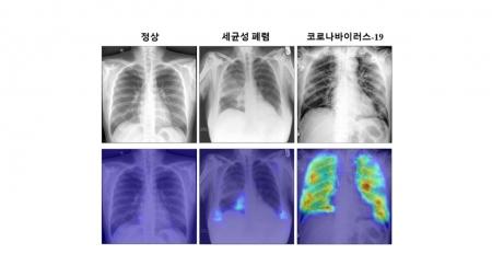 인공지능으로 코로나19 감염 진단기술 개발