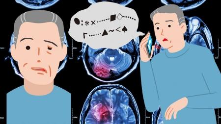 [사이언스 취재파일] 뇌졸중 후 찾아온 언어장애·신체마비…치료제 나올까?