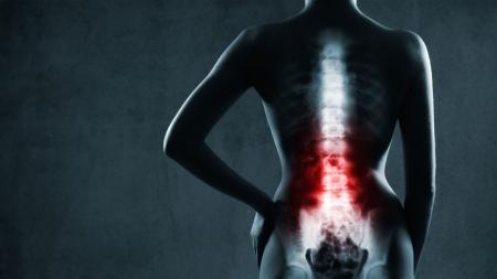 [내 몸 보고서] '디스크'부터 '척추관 협착증'까지…통증으로 알아보는 척추 질환