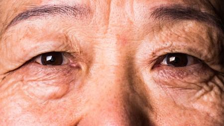 [내 몸 보고서] 눈에도 중풍이 온다? 실명 초래하는 '망막 혈관 폐쇄'