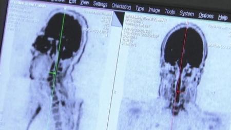 """영국 연구진 """"뇌 외상에 의한 뇌졸중 위험, 최대 5년 간다"""""""