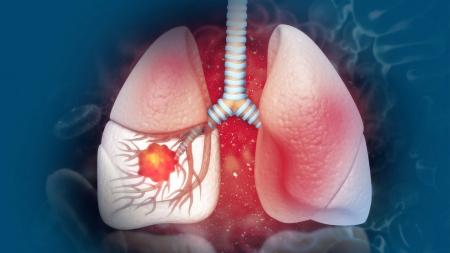 [내 몸 보고서] 국내 사망 1위 폐암…장기 생존 길 열렸다