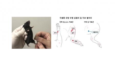 """""""침 치료로 우울증 개선…동물 실험에서 확인"""""""