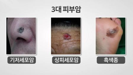 [내 몸 보고서] 내 몸의 반점, 점일까? 암일까?…피부암의 모든 것