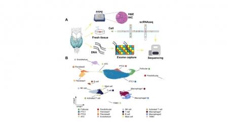 빅데이터 활용해 갑상샘암 악화 유전자 발굴